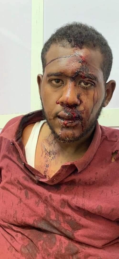 بالصور.. مجموعة متفلتة تقوم بالاعتداء على شاب وضربه بشارع عبيد ختم